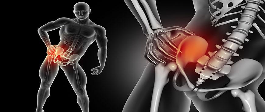 Osteopatia y problemas de Cadera